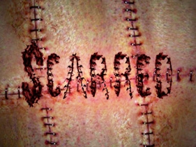 Scarred tv show photo
