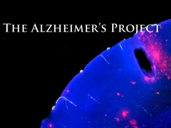 The Alzheimer's Project tv show photo