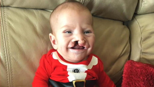 S0E0 Mother of Child With Cleft Lip and Palate Is Inspired by Stranger's Generosity
