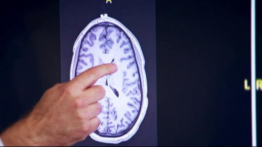 S0E0 New Study Finds CTE in 99 Percent of Deceased NFL Players' Brains