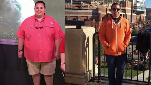 S0E0 Man loses 180 pounds in just 10 months with diet, exercise